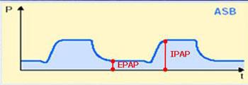 Aerazione forzata bipap ventilazione for Lafayette termostato manuale
